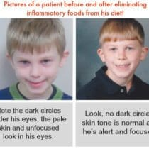 Pictures of a patient before and after eliminating inflammatory foods from his diet!